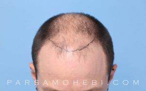 this is an image of hair transplant patient in Modesto