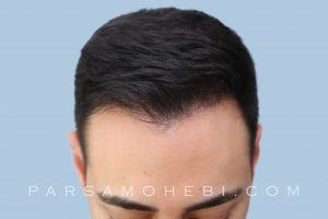 this is an image of hair transplant patient in Mountain View