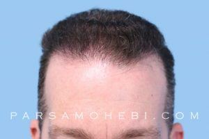 this is an image of hair transplant patient in Palo Alto