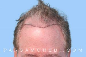 this is an image of hair transplant patient in Redwood City