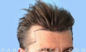 this is an image of hair transplant patient in San Jose