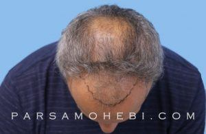 this is an image of hair transplant patient in San Mateo