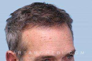 this is an image of hair transplant patient in Stockton