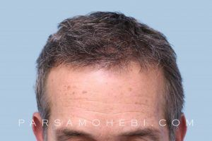 this is an image of hair transplant patient in Vallejo