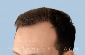 this is an image of hair transplant patient in Walnut Creek