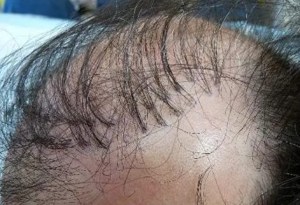 Why hair transplant plugs aren't used