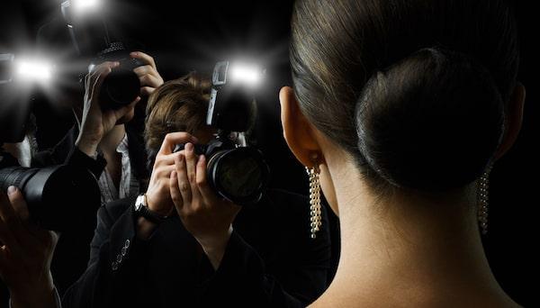 Female celebrity hair loss
