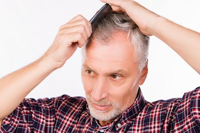 How does minoxidil affect hair shedding