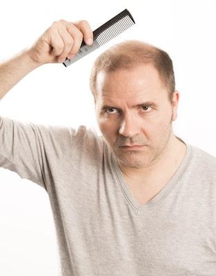 Hair transplant questions