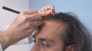 Hair Transplant Doctor Beverly Hills, CA
