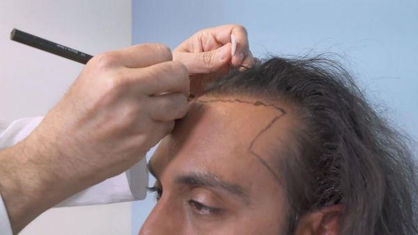 Dr. Gujrati, a hair transplant surgeon had a hair transplant