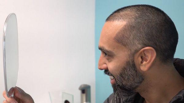 Hair Transplant surgeon has a hair transplant procedure