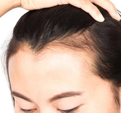 Female Pattern Baldness Treatment