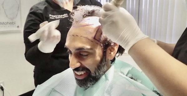 Hair Transplant surgeon shaving hair before hair transplant procedure