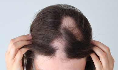 Hair loss affected by alopecia areata