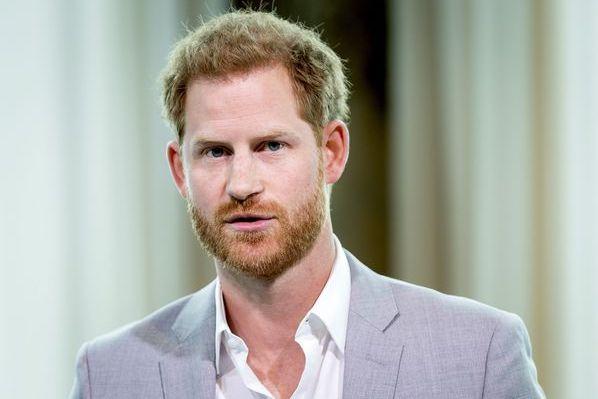 Hair loss Prince Harry