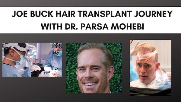 Joe Buck hair transplant with Dr. Parsa Mohebi