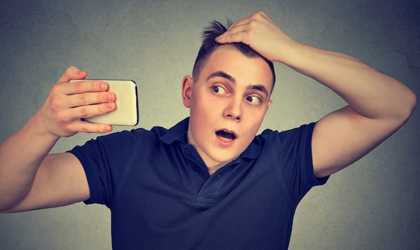 Why male pattern baldness happens