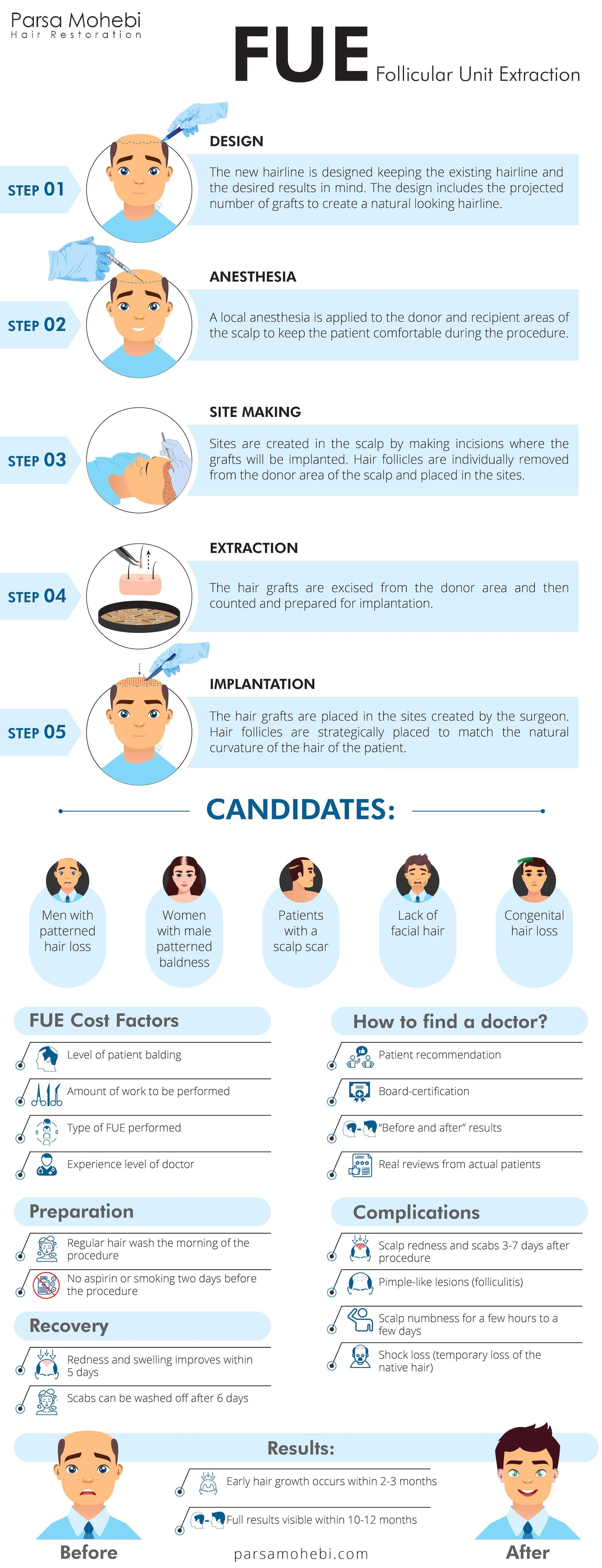 FUE hair transplant explained in infographic